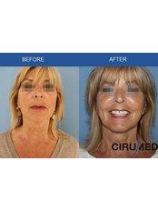 Facelift - Cirumed Clinic Marbella