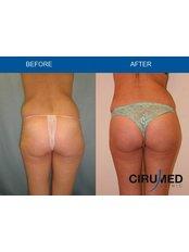 Butt Implants - Cirumed Clinic Marbella