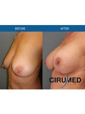 Breast Lift - Cirumed Clinic Marbella