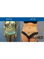 Full Abdominoplasty  - Cirumed Clinic Marbella