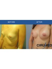 Breast Implants - Cirumed Clinic Marbella
