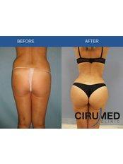 Fat Transfer - Cirumed Clinic Marbella