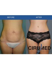 Laser Assisted Liposuction - Cirumed Clinic Marbella