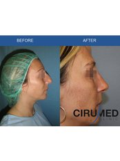 Rhinoplasty - Cirumed Clinic Marbella