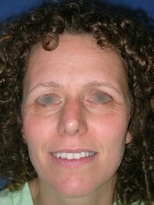 Brow Lift (regional) - WISH Aesthetic Surgery Clinic