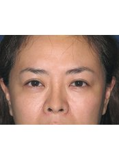 Asian double eyelid surgery - Full-incision procedure - WISH Aesthetic Surgery Clinic