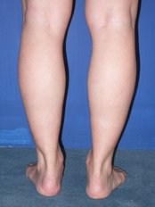 Calf Reduction - Selective nerve block - WISH Aesthetic Surgery Clinic