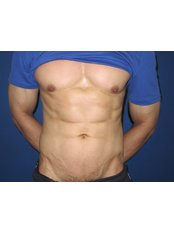 Abdominal Etching (male) - WISH Aesthetic Surgery Clinic