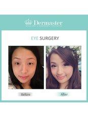 Eyelids Surgery - Dermaster Thailand