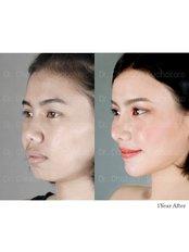 Rhinoplasty - Dr. Chakarin Plastic Surgery