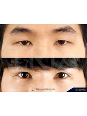 Double Eyelid Surgery - Dr. Chakarin Plastic Surgery