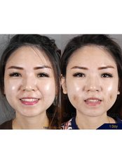 Dimple Creation - Dr. Chakarin Plastic Surgery