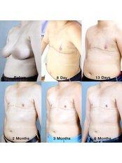 FTM Top Surgery  - Dr. Chakarin Plastic Surgery