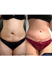 Tummy Tuck - Dr. Chakarin Plastic Surgery