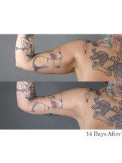 Arm Lift - Dr. Chakarin Plastic Surgery