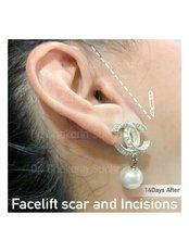 Facelift - Dr. Chakarin Plastic Surgery