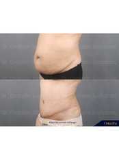 Lipoabdominoplasty - Dr. Chakarin Plastic Surgery