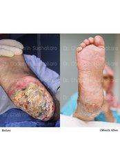 DM Foot Wound Treatment - Dr. Chakarin Plastic Surgery