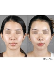 Fat Transfer - Dr. Chakarin Plastic Surgery
