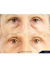 Blepharoplasty - Dr. Chakarin Plastic Surgery