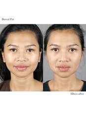 Buccal Fat Removal - Dr. Chakarin Plastic Surgery