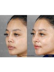 Revision Rhinoplasty - Dr. Chakarin Plastic Surgery