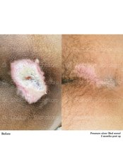 Chronic Wound Treatment - Dr. Chakarin Plastic Surgery