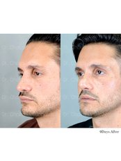 Revision Rhinoplasty - Dr. Chakarin Plastic Surgery