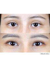 Eyelid Surgery - Dr. Chakarin Plastic Surgery