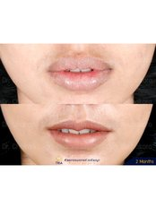 Lip Reduction - Dr. Chakarin Plastic Surgery