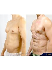 Abdominal Etching - Dr. Chakarin Plastic Surgery