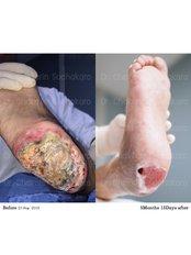 Chronic Wound Treatment - Dr. Chakarin Plastic Surgery