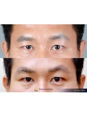 Brow Lift - Dr. Chakarin Plastic Surgery