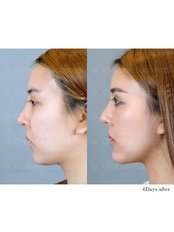 Chin Implant - Dr. Chakarin Plastic Surgery