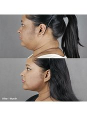 Neck Liposuction - Dr. Chakarin Plastic Surgery
