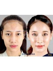 Open Rhinoplasty - Dr. Chakarin Plastic Surgery