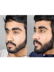 Septoplasty - Dr. Chakarin Plastic Surgery