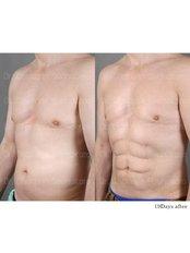 Abdominal Etching - Dr. Chakarin Plastic Surgery