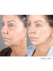 Mini Facelift - Dr. Chakarin Plastic Surgery