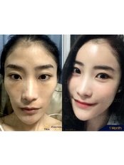 Facial Fat Transfer - Dr. Chakarin Plastic Surgery