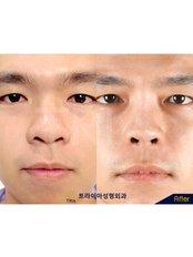 Semi-open rhinoplasty - Dr. Chakarin Plastic Surgery
