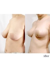 Breast Lift - Dr. Chakarin Plastic Surgery