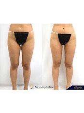 Thigh Liposuction - Dr. Chakarin Plastic Surgery
