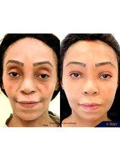 Fat Transfer - Dr. Chakarin Plastic Surgery