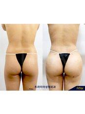 Fat Transfer Buttocks - Dr. Chakarin Plastic Surgery