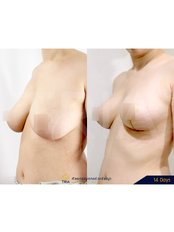 Breast Lift - Dr. Chakarin Plastic Surgery