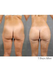 Fat Transfer Buttocks - Dr. Chakarin Plastic Surgery