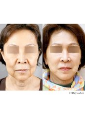 Facelift - Dr. Chakarin Plastic Surgery