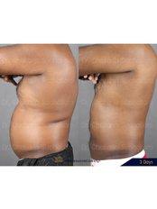 VASER Lipo™ - Dr. Chakarin Plastic Surgery