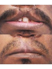 Cleft Lip and Palate Treatment - Dr. Chakarin Plastic Surgery